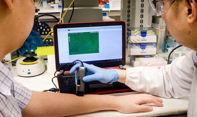 采用创新纳米金颗粒,有效探测并预防异常结疤?看这里!